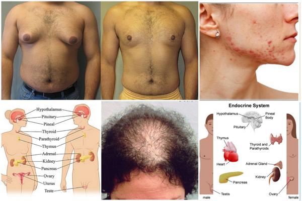 obalans hormoner symtom